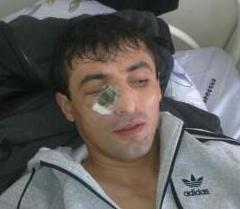 Альберт ГАБАРАЕВ был зверски избит в Цхинвале сотрудниками госохраны президента Южной Осетии